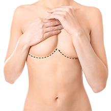 breast5